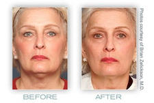non-surgical face-lifts