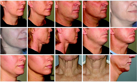 Ultherapy Before & After for Neck and Chin