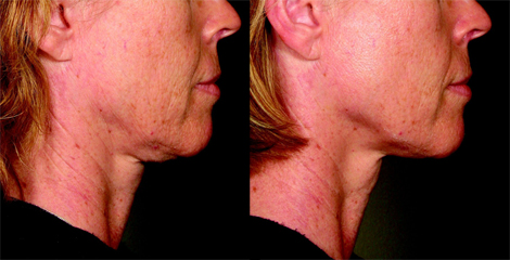 Ultherapy- Before & After for neck and chin treatment
